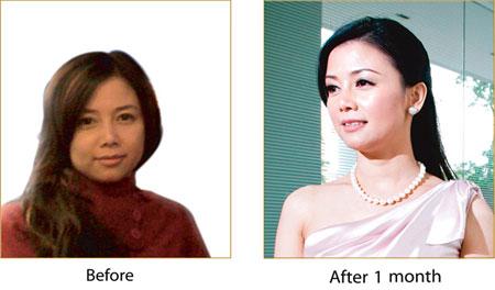 Sau 1 tháng khách hàng điều trị căng da bằng chỉ vàng