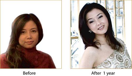 Sau 1 năm khách hàng điều trị căng da bằng chỉ vàng