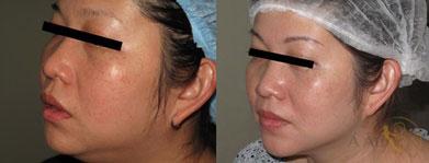 Khách hàng điều trị sau 1 tháng, da trắng sáng, khuôn mặt cân đối, phần xương hàm thon gọn, phần nọng cằm biến mất hoàn toàn.