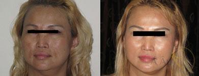 Khách hàng điều trị sau 1 tháng, các vết thâm nám lâu năm đã được xóa sạch, làn da căng tràn sức sống, khuôn thon gọn hơn.