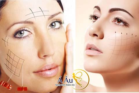 Hình ảnh Căng da mặt bằng chỉ vàng được nhiều người ưa chuộng bởi ưu điểm Nhanh chóng, An toàn và Hiệu quả.