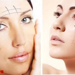 Sợi chỉ S Soft giúp da mặt săn chắc, cơ mặt thon gọn hoàn hảo.