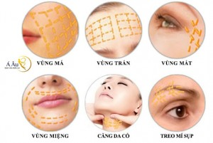 Hình ảnh Những phân vùng nên căng da bằng phương pháp kéo chỉ vàng 24k.