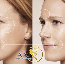 Hình ảnh Chỉ với 1 lần thực hiện duy nhất, phương pháp căng da mặt bằng chỉ vàng 24k sẽ giúp bạn trẻ hóa gương mặt toàn diện.