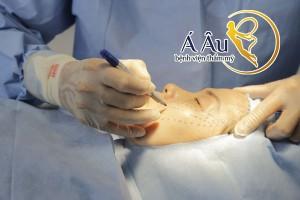 Tại Bệnh viện thẩm mỹ Áu âu, căng da mặt bằng chỉ là giải pháp được nhiều chị em tin dùng.