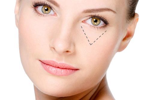 Đâu là cách trị vết nhăn ở mắt triệt để, nhanh chóng?