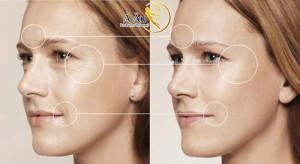 Những công dụng của phương pháp căng da mặt bằng chỉ vàng 24k không đau, hiệu quả lâu dài