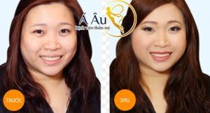 Gương mặt sẽ có sự thay đổi đáng kể sau khi căng da mặt.