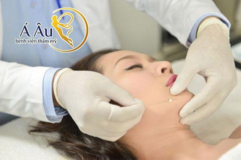 Căng da mặt bằng chỉ là kỹ thuật thẩm mỹ được nhiều chuyên gia đánh giá cao.