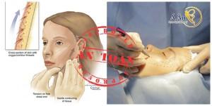 Căng da mặt bằng chỉ tại Bệnh viện thẩm mỹ Á Âu đã được Bộ Y tế cấp phép sử dụng.