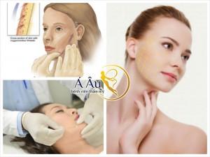 Hiệu quả căng da mặt có thể kéo dài tù 10-15 năm sau đó.