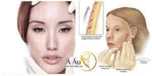 Căng da mặt bằng chỉ vàng 24k giúp chị em giải quyết tuyệt đối hiện tượng da mặt lão hóa.