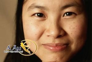 Những đốm sạm da, thâm nám là biểu hiện thường thấy của tình trạng lão hóa da mặt.