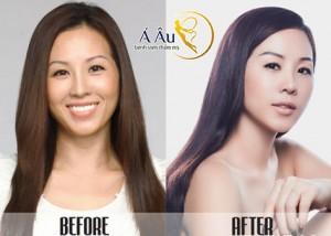 Gương mặt chị em sẽ được cải thiện đáng kể nhờ phương pháp căng da toàn diện.