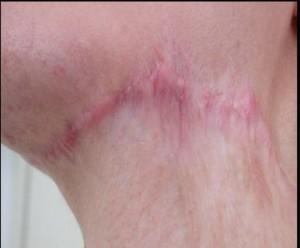 Hậu quả khi phẫu thuật thay da