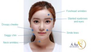 Cơ chế hoạt động của công nghệ căng da mặt Bio Lift