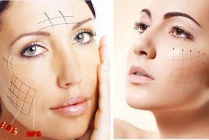 Căng da mặt bằng chỉ vàng 24k giúp da mặt căng mịn