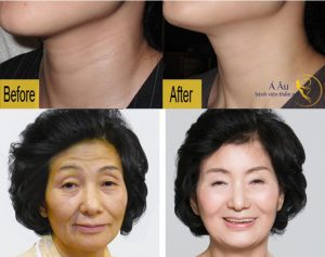 công nghệ căng da mặt cực tốt