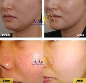 Căng da mặt trước và sau