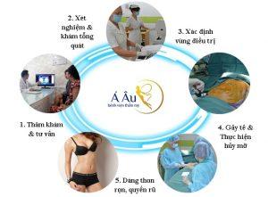 Quy trình hút mỡ gồm 6 bước